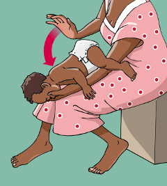 How to give back blows to an infant