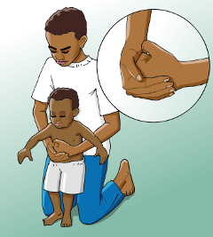 How to give abdominal thrusts to a young child